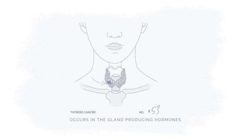 thyroid-cancer-illustration